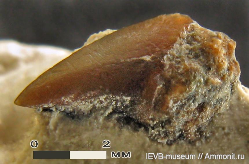 Коронка переднего верхнего зуба